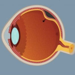decollement retine symptomes decollement retine gaz decollement de retine cause maladies des yeux docteur nathalie butel ophtalmologiste paris 16 ophtalmologue paris 16