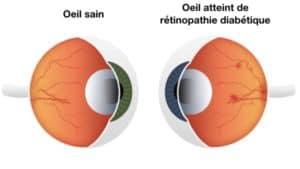 la retinopathie diabetique traitement retinopathie diabetique proliferante traitement maladies des yeux docteur nathalie butel ophtalmologiste paris 16 ophtalmologue paris 16