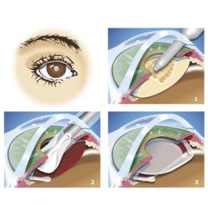 operation cataracte paris chirurgie de la cataracte prix operation cataracte prix maladies des yeux docteur nathalie butel ophtalmologiste paris 16 ophtalmologue paris 16